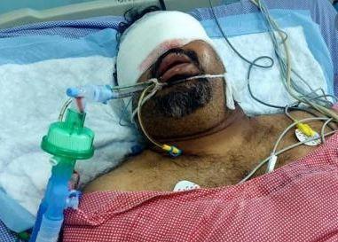 Mahesh Kathi admitted in hospital