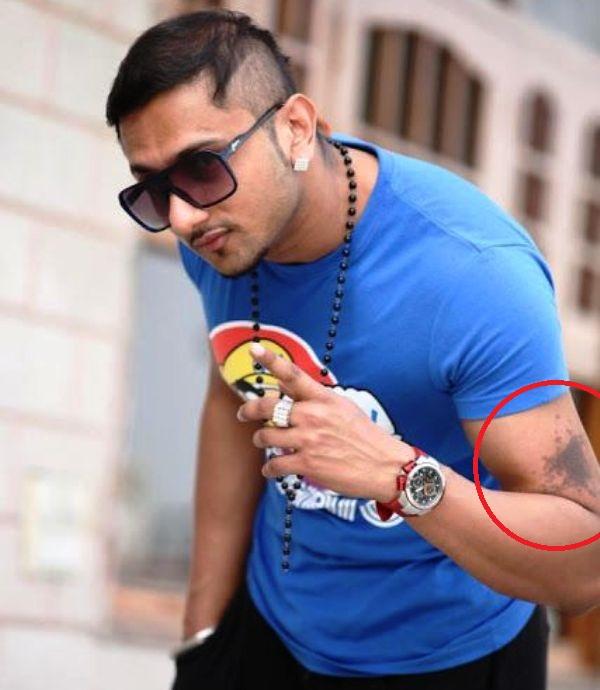 Honey Singh's birth mark